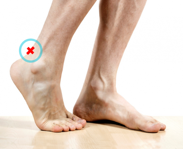 Patients with midsubstance Achilles tendon pain are invited to participate in our clinical trial.